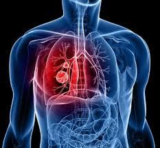 pengobatan infeksi paru